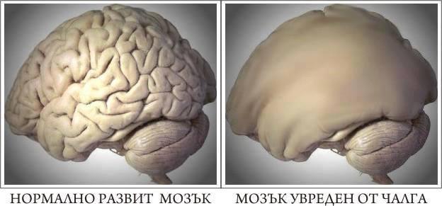мозък увреден от чалга
